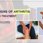 Signs of Arthritis and Its Treatment